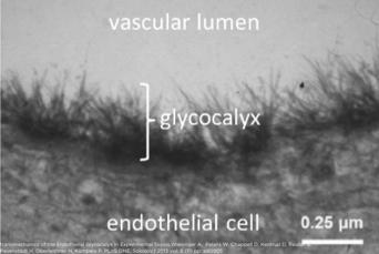 Endothelial Glycocalyx and Cardiovascular Disease