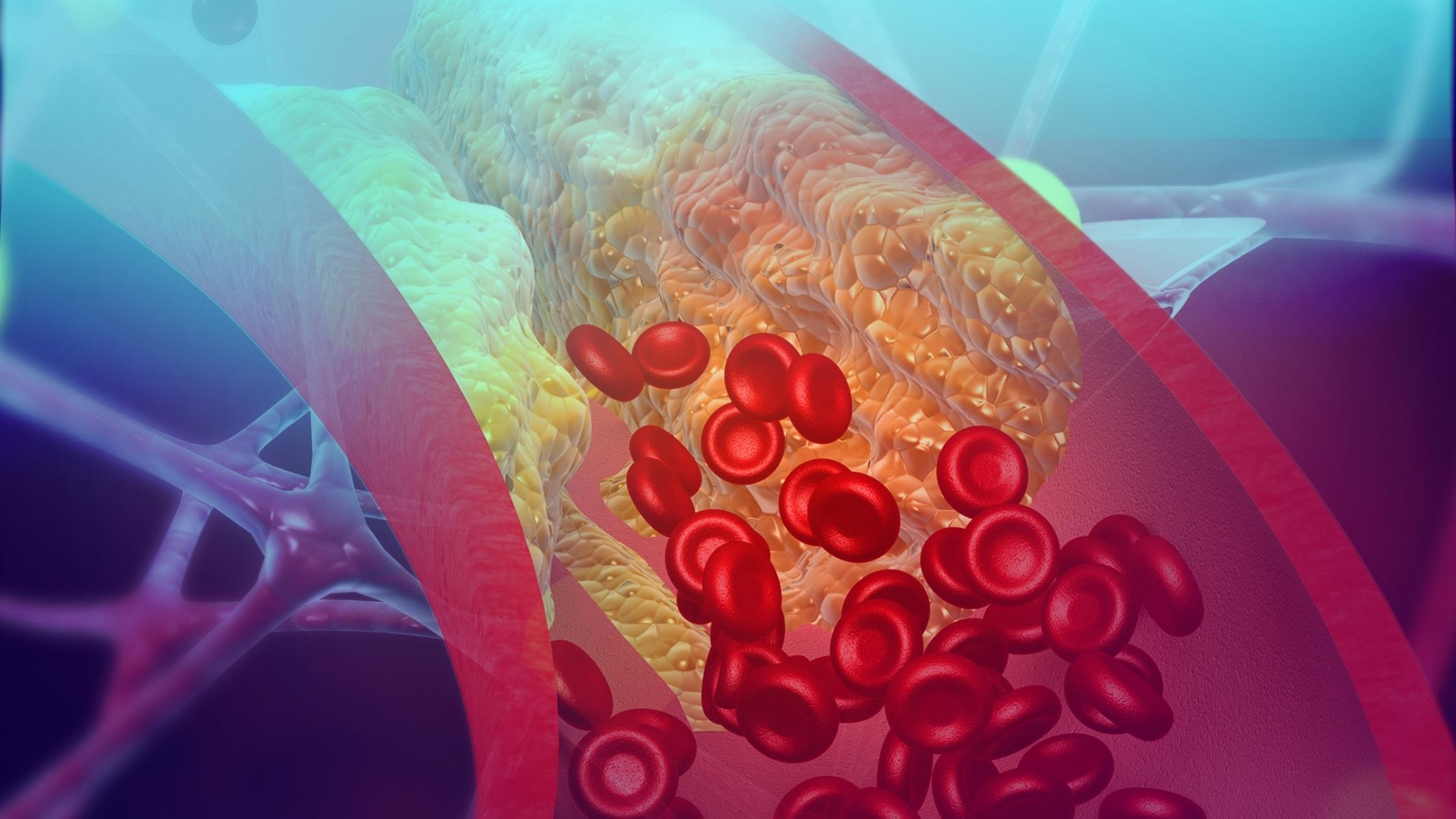 Vessel Atherosclerosis RBCs