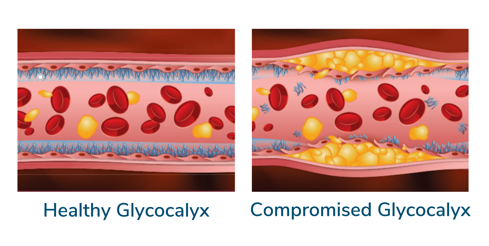 A healthy artery and its wall compared to a compromised artery with plaque buildup and glycocalyx degradation